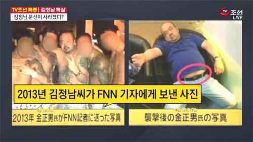 '문신이 사라졌다?'…김정남 시신, 가짜 조작설?
