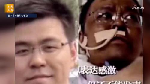 코로나19로 얼굴 검게 변한 中 의사, 결국 사망