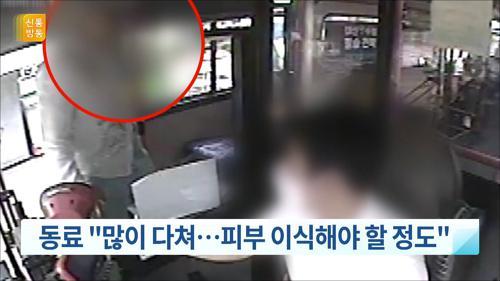 """""""마스크 써라"""" 요구에…버스기사 목 물어뜯은 50대 구속"""