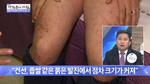 3대 피부 질환 아토피, 건선, 지루성 피부염!