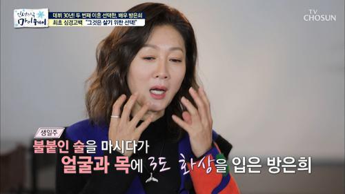 '화주' 때문에?! 방은희 얼굴 화상 사건의 전말